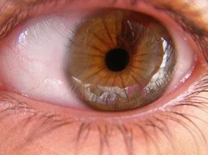 Heterocromía iridis