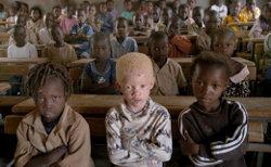 Albino Las 10 medicinas alternativas actuales más delirantes