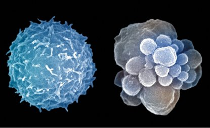 Glóbulo blanco en apoptosis