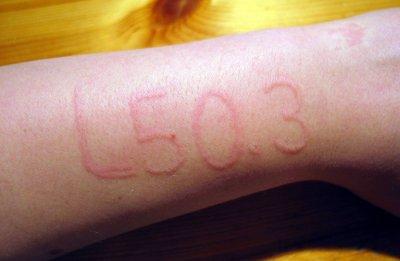 Dermografismo Dermografismo: La escritura inflamatoria de la piel