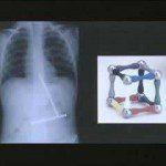 Radiografias extrañas