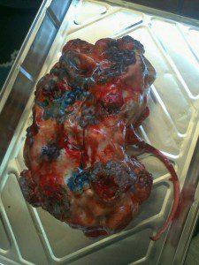 Enfermedadrenal 225x300 Tartas anatómicas muy poco apetitosas