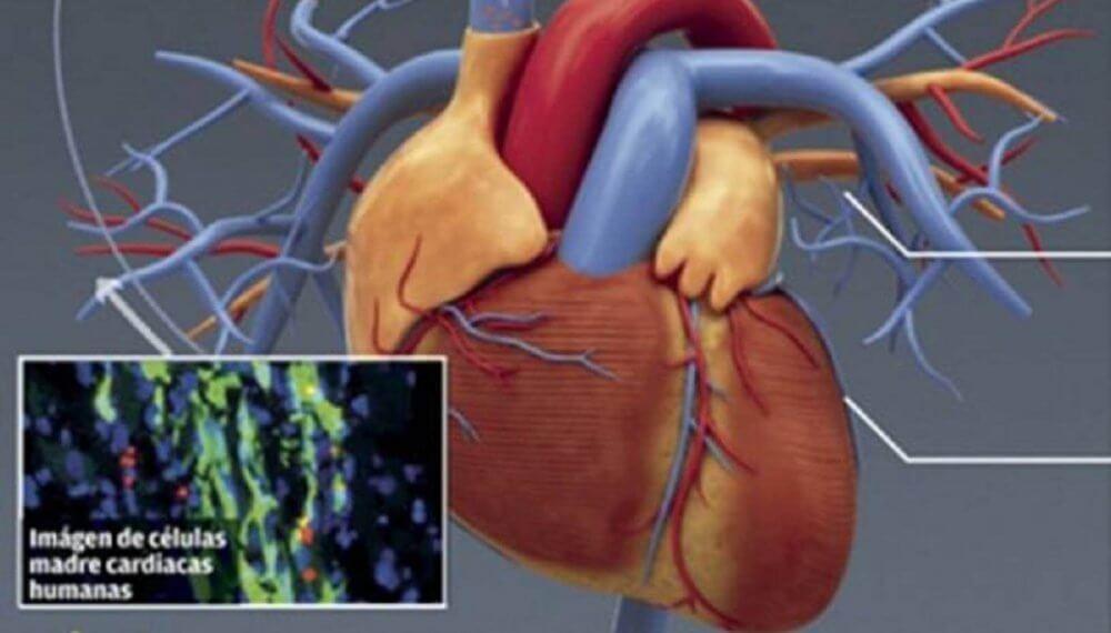 Células madre cardíacas