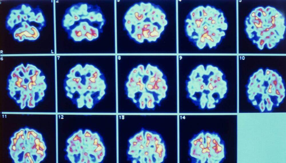 Actividad del cerebro