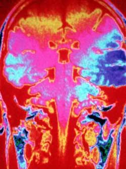 drogascerebro Animaciones de los efectos de las drogas en el cerebro