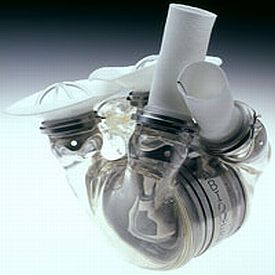 Corazón Artificial