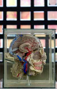 Museo3 El Museo de Cerebros Humanos