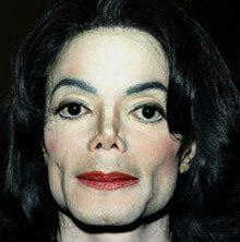 Michael Michael Jackson no tenía vitíligo