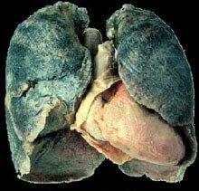 Pulmón por Tabaco